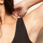 [Chuyên gia tư vấn] Da nhạy cảm nên triệt lông tay bằng cách nào?