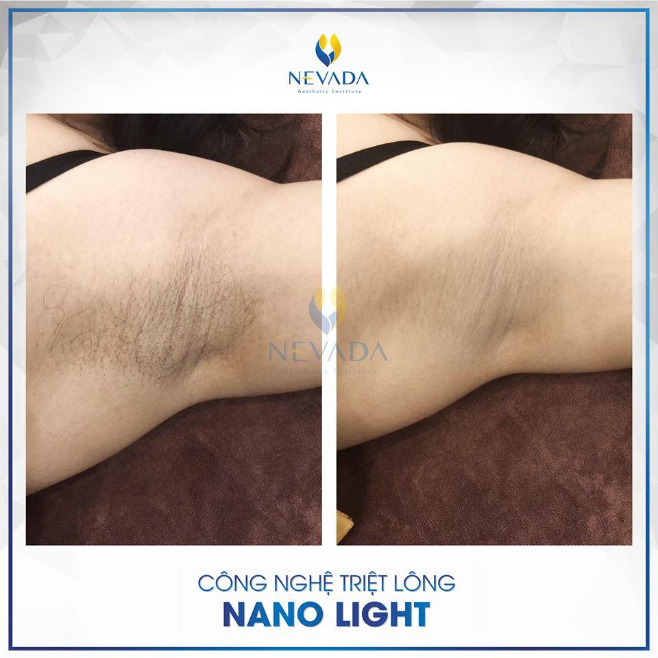 Công nghệ triệt lông Nano Light có tốt không