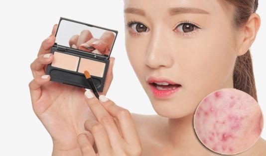 triệt lông mặt có giảm mụn nhọt không