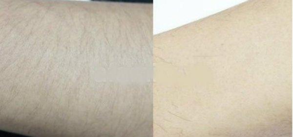 Kem tẩy lông cleo có tẩy vùng kín được không?