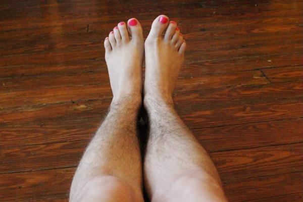 Quan điểm tẩy lông vĩnh viễn có hại không? Liệu pháp an toàn
