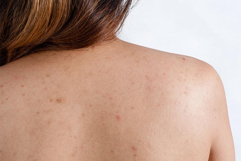 Bật mí cách trị viêm lỗ chân lông ở lưng hiệu quả