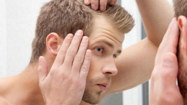 Cách triệt lông trán hiệu quả, triệt lông trán, cách triệt lông trán