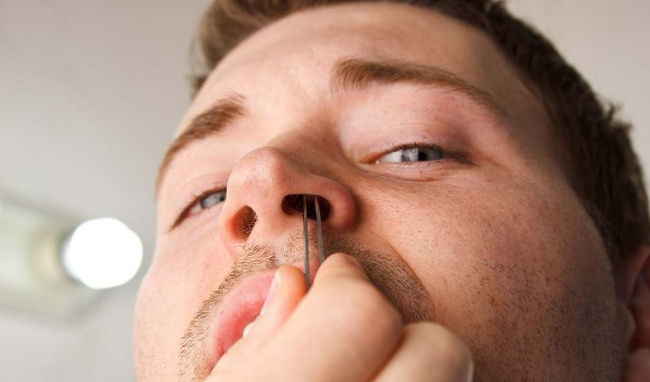Bật mí lông tài mọc ở mũi và cổ nói lên điều gì?