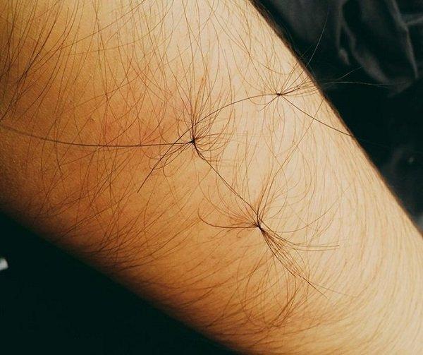lông tài là gì, lông tài có tốt không, lông tài nên mọc ở đâu thì tốt, có nên triệt lông tài không